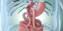 Bypass gastrique et diabète type 1