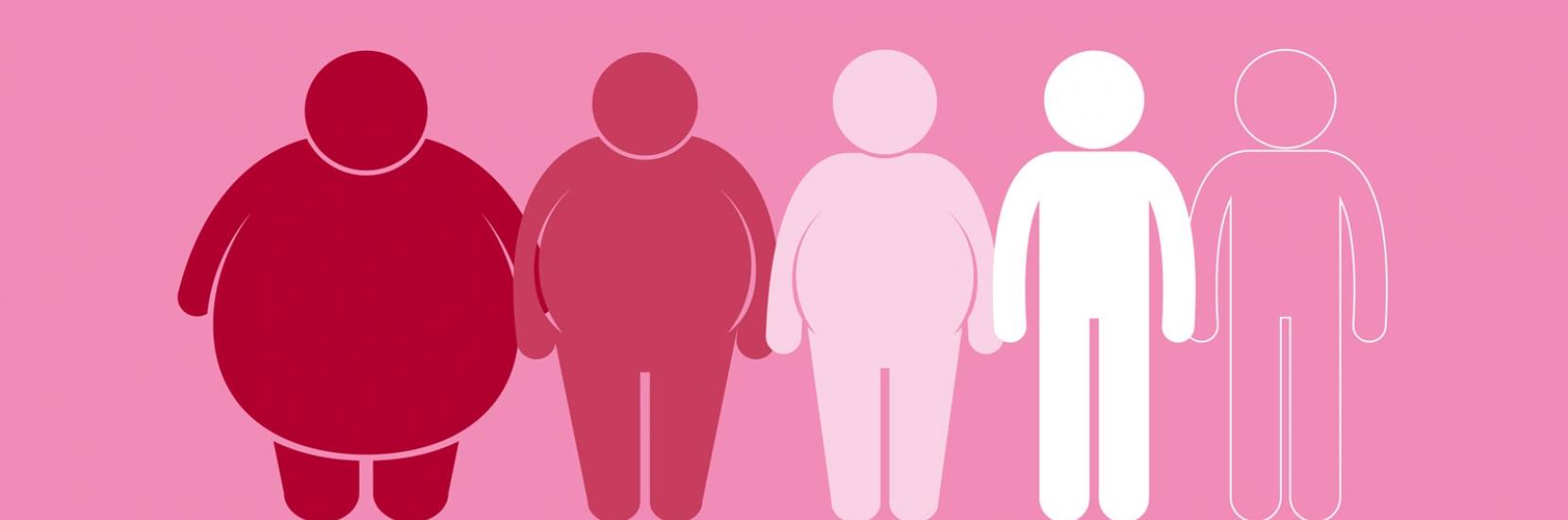 chirurgie obesite en Tunisie