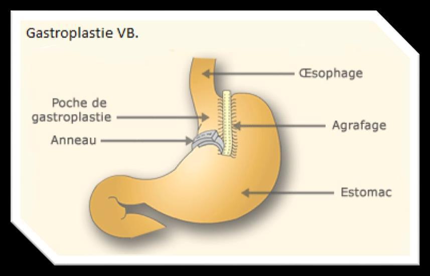 Gastroplastie verticale calibrée